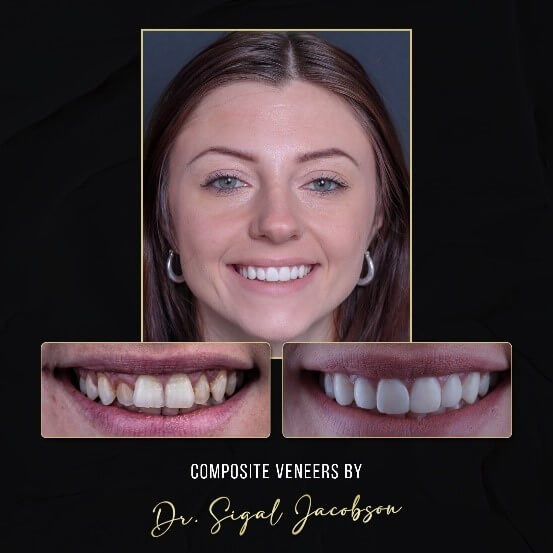 Composite Veneers Melbourne: Before and After Photo