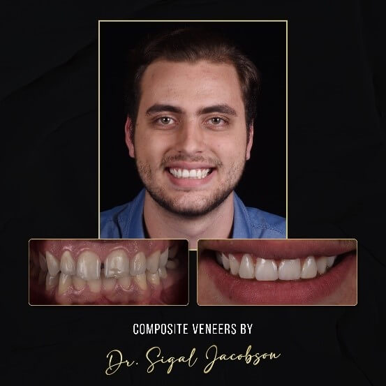 Composite Veneers: Before and After Photo