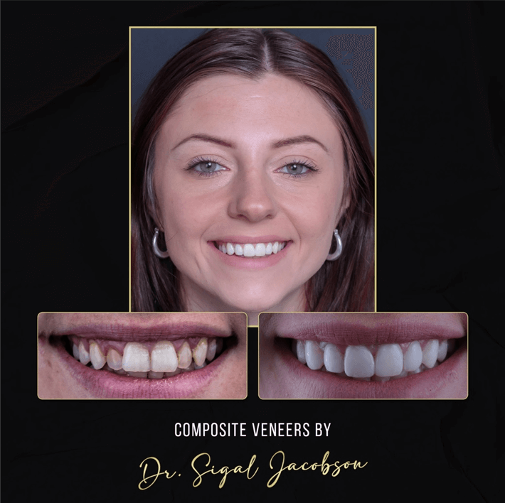 Uveneer Before and after picture | An affordable and less invasive alternative to porcelain veneers