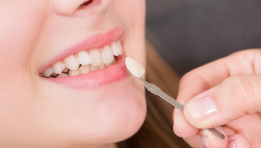 How Much Do Veneers Cost and Are They Worth It?
